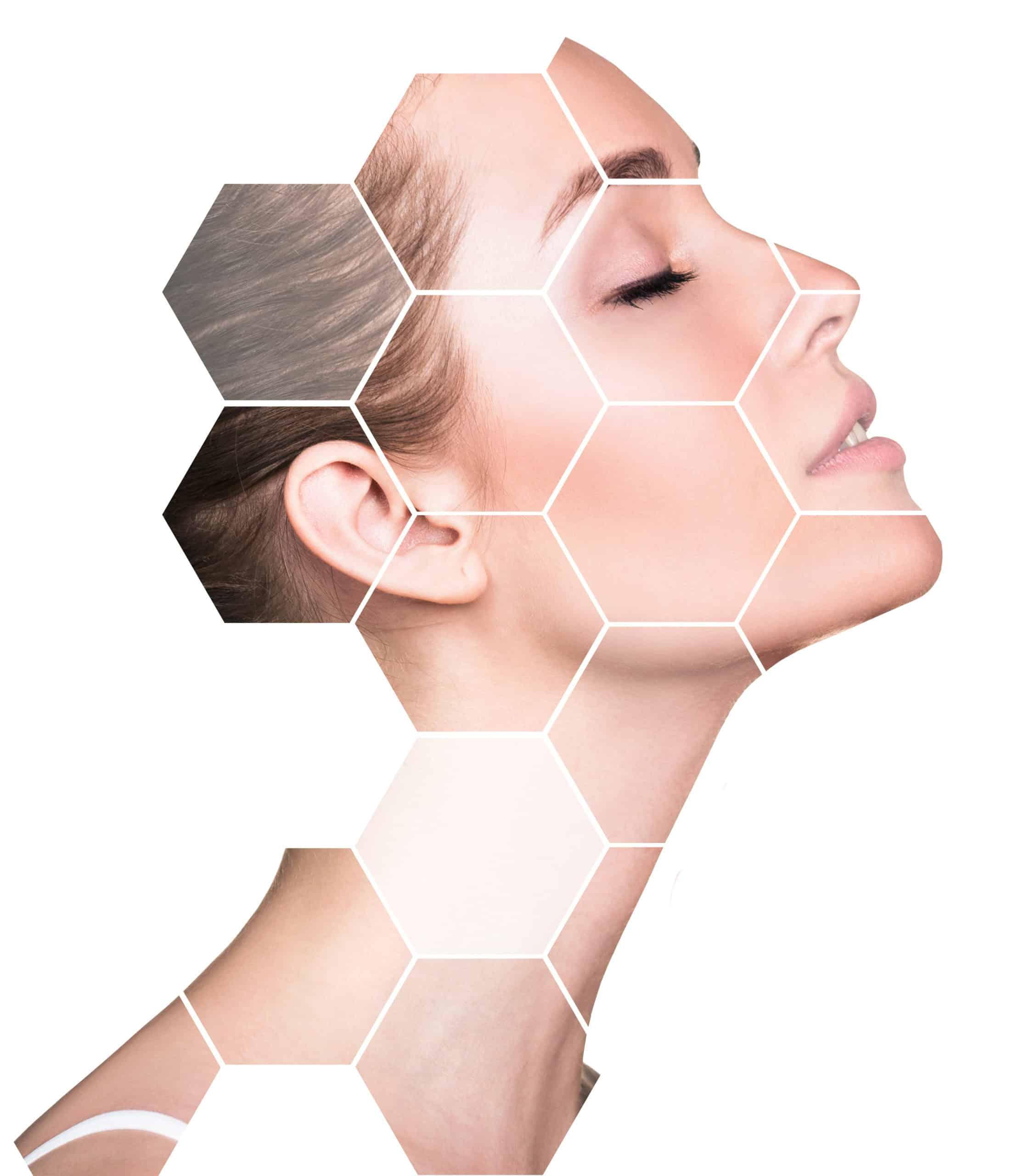 rajeunissement de la peau Montreal